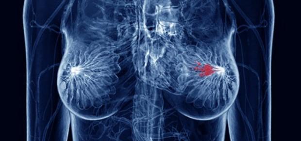 cbd-breast-cancer-11-18-720x340.jpg